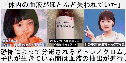 日本 芸能人 アドレノクロム